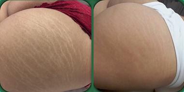 Massagem em Spa Preço na Vila Buarque - Preço de Day Spa